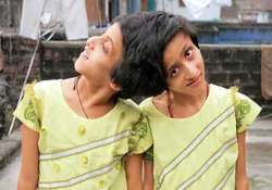 sc asks medical team to visit patna to examine conjoined
